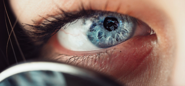Iris dunkler die ring um Irisdiagnose